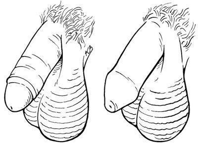 """Um pénis circuncideis & lt; i & gt; & lt (l.); / I & gt; com a prepúcio removed- um pénis incircuncisa & lt; i & gt; (. R) & lt; / i & gt; com """"/ & gt; & lt; / p & gt; & lt; div classe ="""