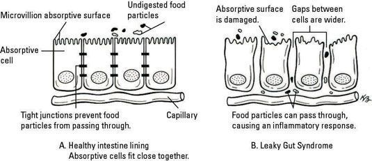 junções apertadas em células não são sempre tão apertado como eles deveriam ser. [Ilustração por K
